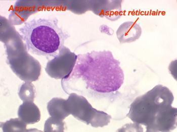 09 tricholeucocytes