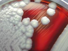 Bacillus cereus 01